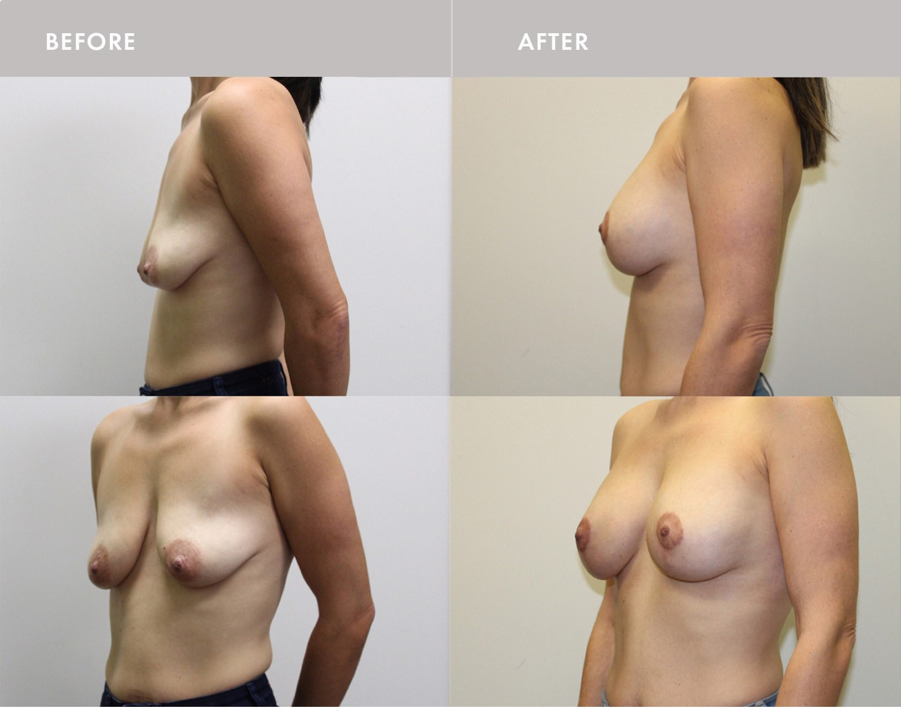 Breast Lift Montreal