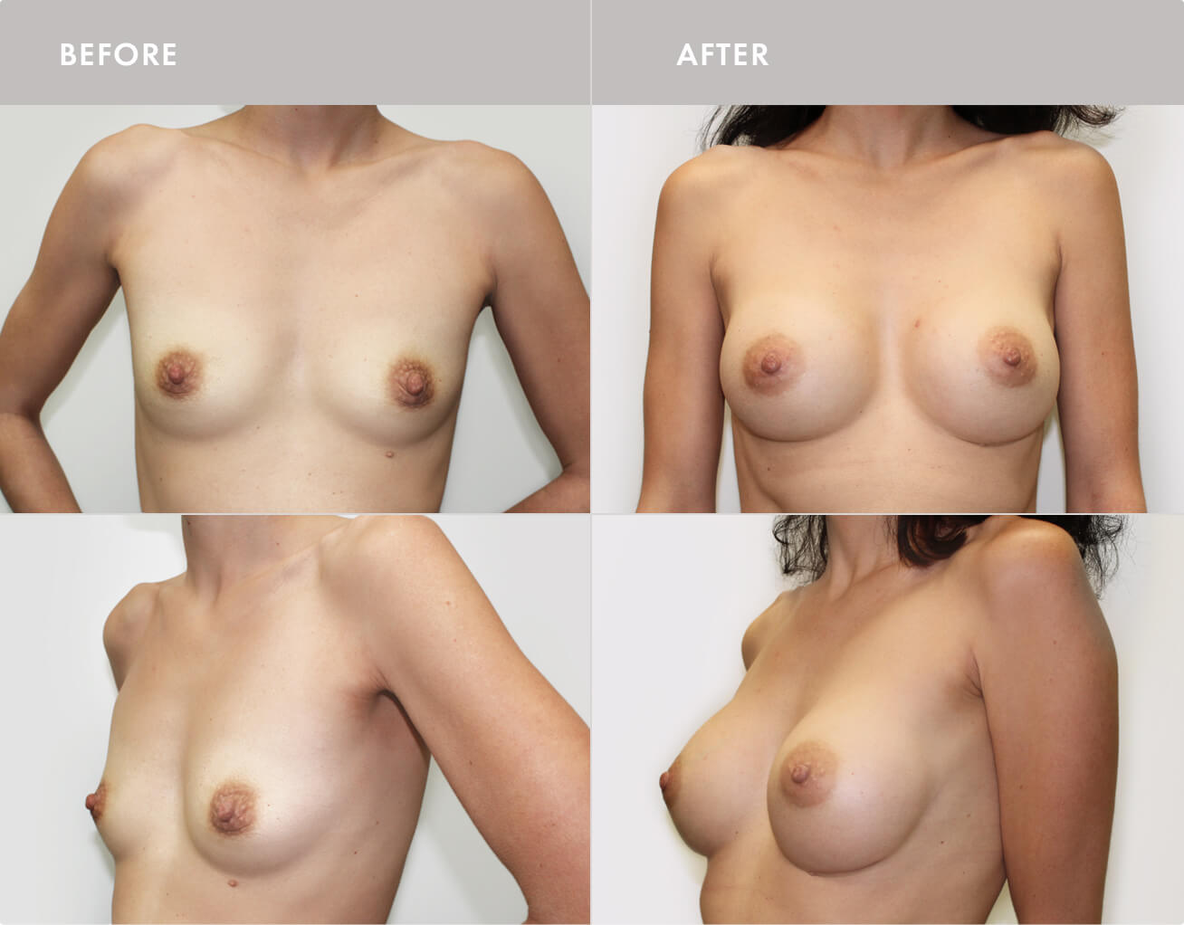 Breast Augmentation Montreal -