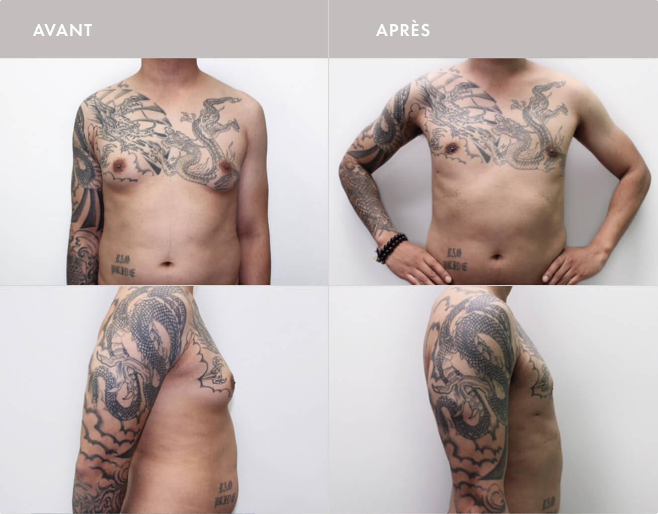 Chirurgie gynécomastie (Réduction mammaire homme)