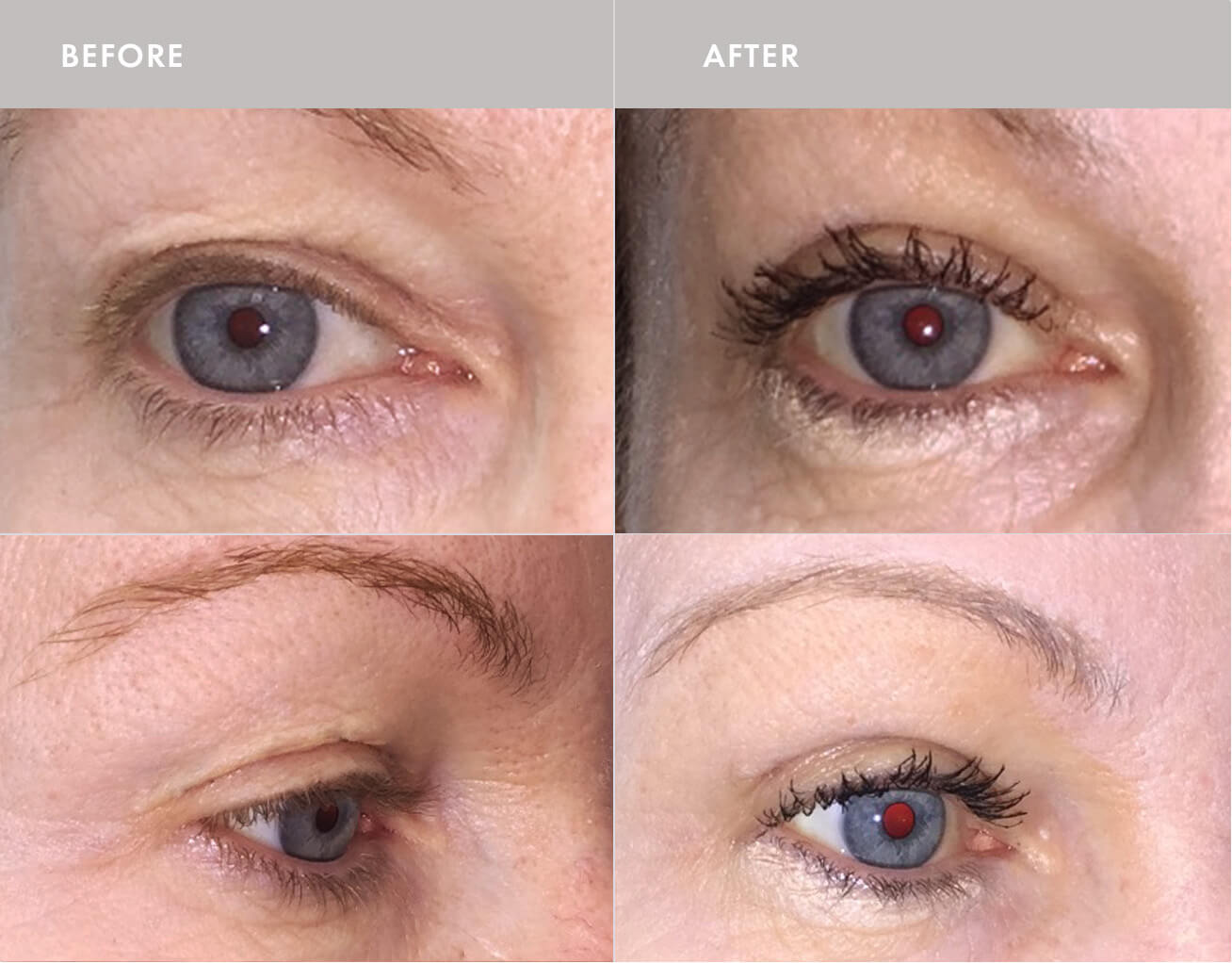 Blepharoplasty Surgery Montreal
