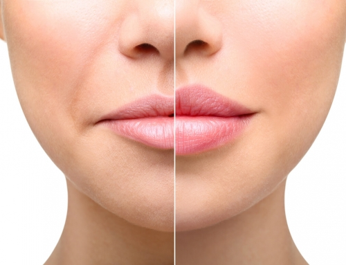 A Simple Guide To Enhancing Your Lips With Filler