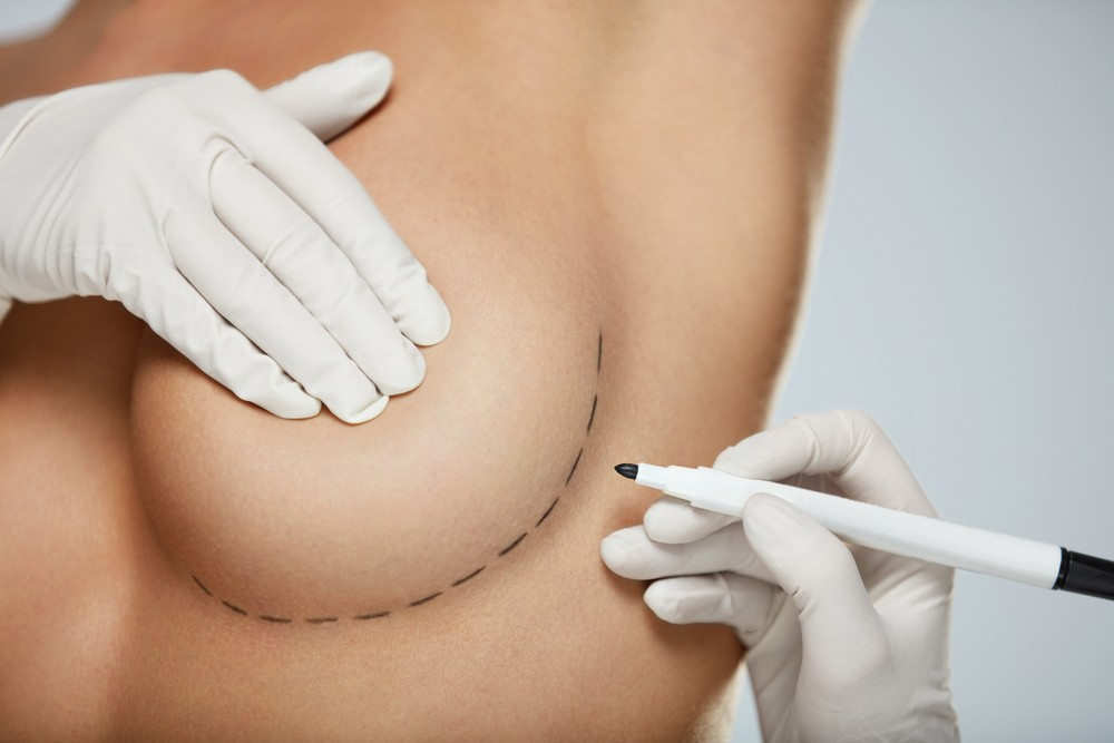 What Is The Difference Between A Breast Lift And A Breast Augmentation? Breast